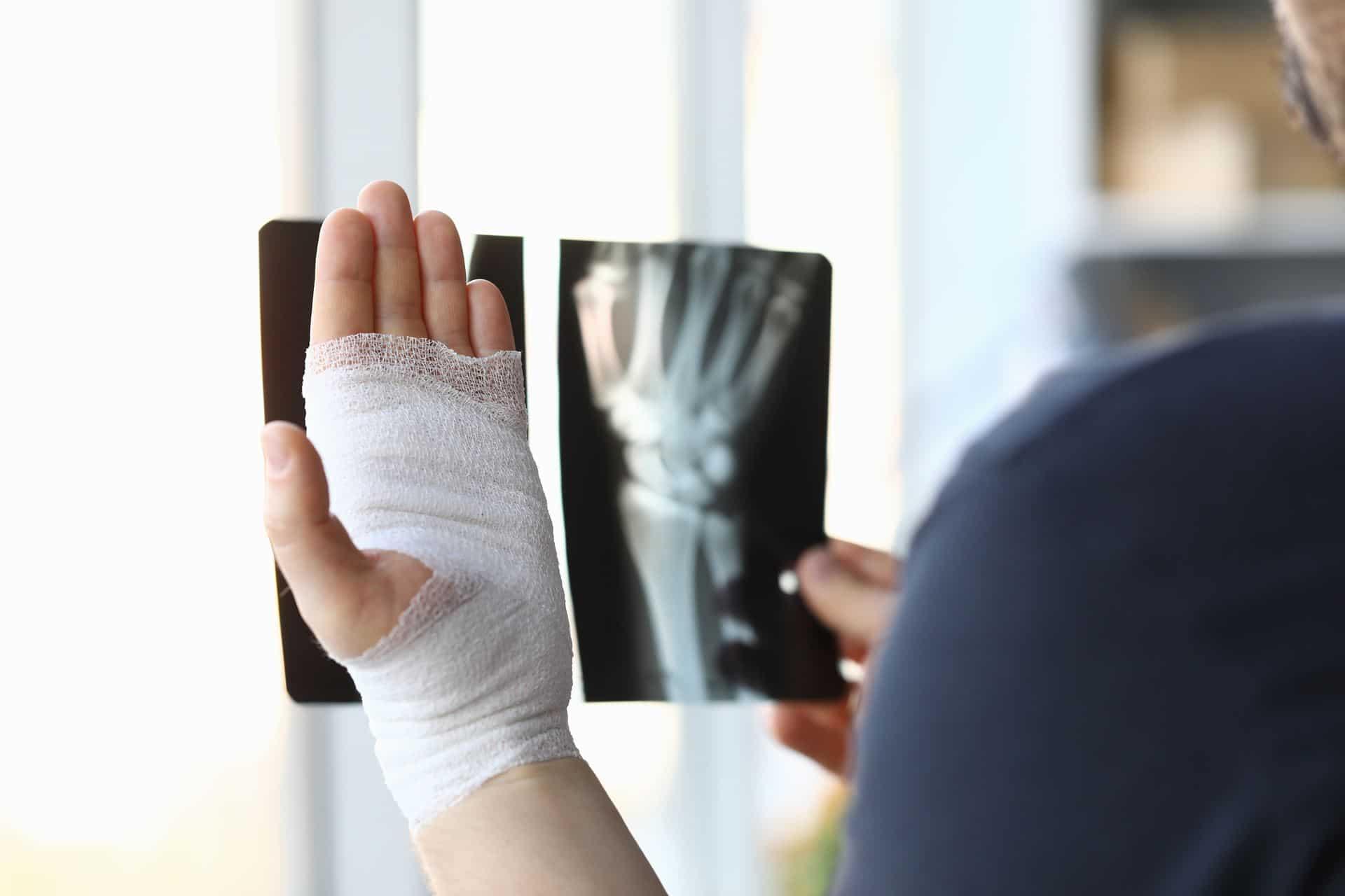 שיקום כף יד - Restart Therapy שיקום למבוגרים באופן פרטי